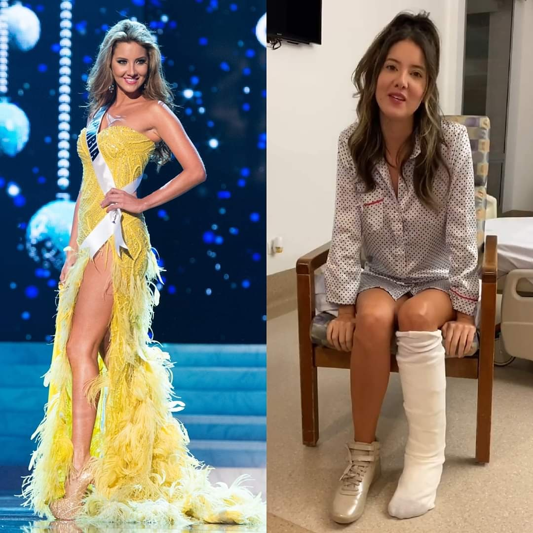 Daniela-Alvarez-Miss-Universe-Colombia-2012-Kakinya-Diamputasi